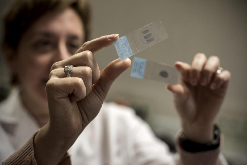 Una investigadora del CNIO enseña muestras de tejido tumoral.
