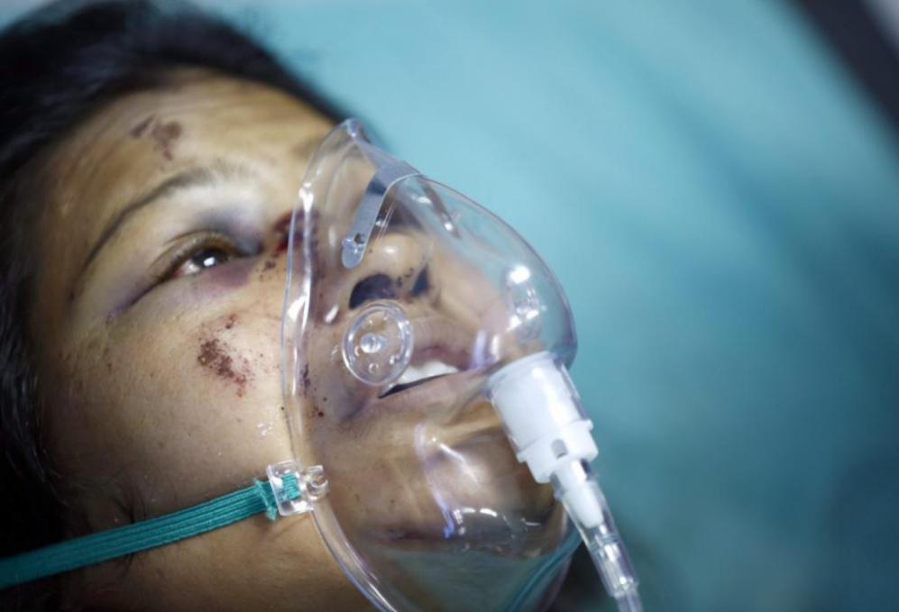 Una mujer herida recibe atención médica en el Hospital Bir en...