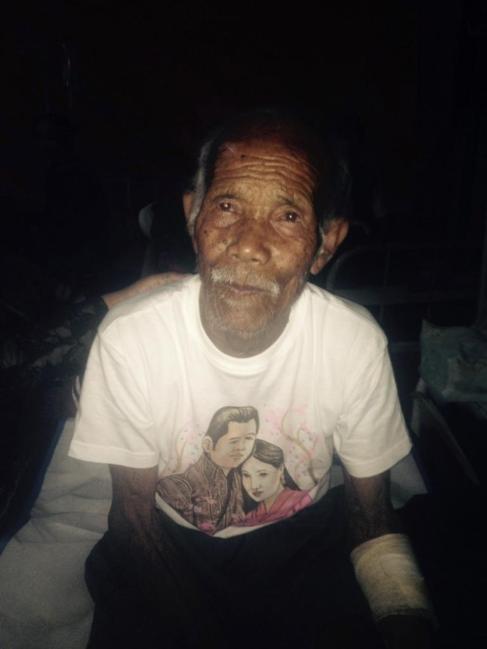 Funchu Tamang, de más de 100 años, en la cama del hospital.
