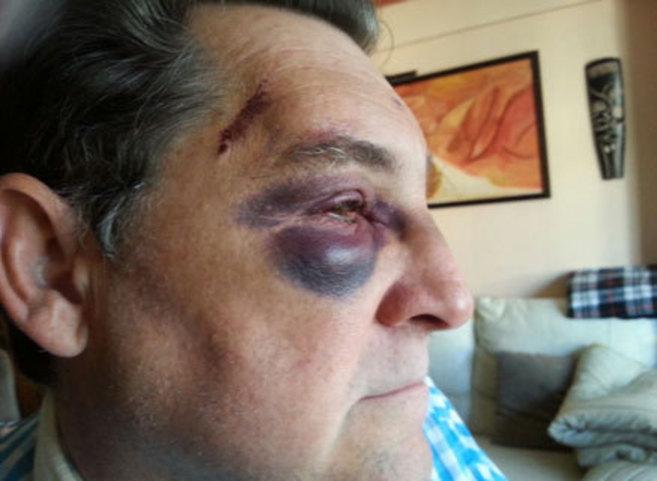 Uno de los funcionarios de la Seguridad Social agredidos.