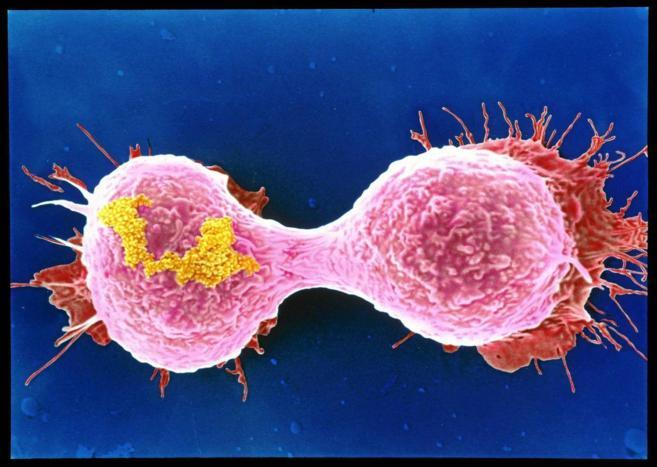 Células durante el proceso de proliferación de un tumor de mama.