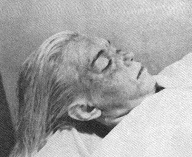 La actriz Marilyn Monroe, en la morgue, en agosto de 1962.