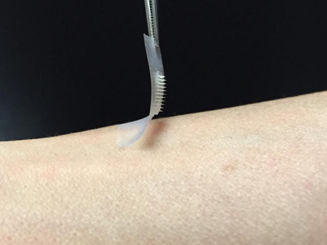 Imagen del parche de insulina.