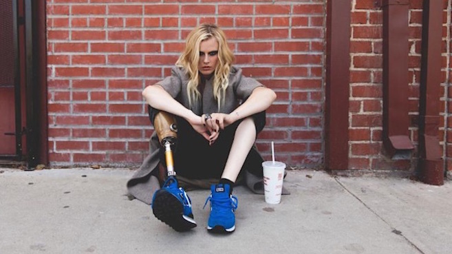 La modelo Lauren Wasser asegura que tuvieron que amputarle la pierna...