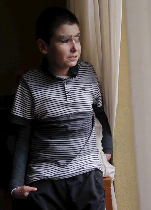 Markel López, afectado por la enfermedad.