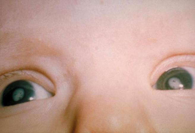 Cataratas en un niño con el síndrome de rubeola congénita.