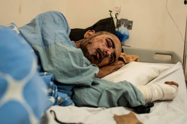 Un joven sirio víctima de un barril explosivo en el hospital de...