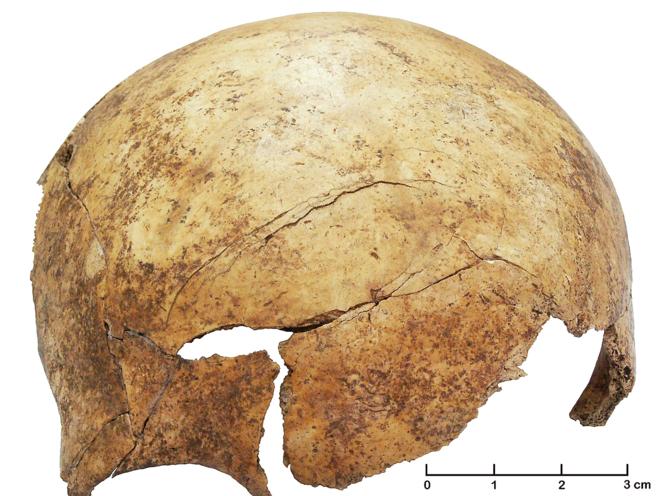Fractura en un cráneo de un niño de 8 años hallado en la fosa...