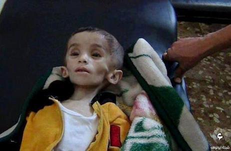 Un niño desnutrido de la localidad siria de Madaya, sometida al...
