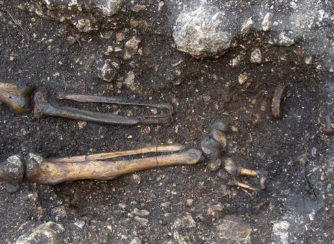 Imagen de la prótesis encontrada.