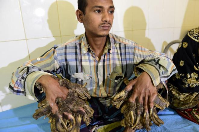El 'hombre árbol' de Bangladesh