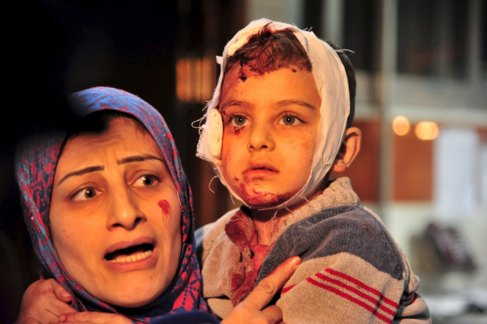 Una mujer lleva al hospital a su hijo herido tras un bombardeo...
