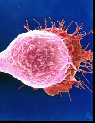 Vista al microscopio de células cancerígenas durante el proceso de...