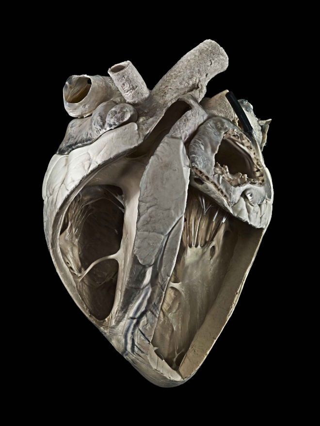 Corazón de una vaca adulta (el lado izquierdo del corazón está en el lado derecho de la imagen).