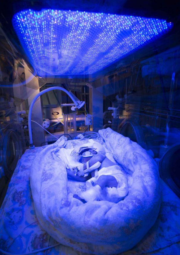Un bebé recién nacido recibe terapia con luz en el Starlight Neonatal Unit en el Barnet Hospital de Londres. Este bebé prematuro sufre de ictericia.
