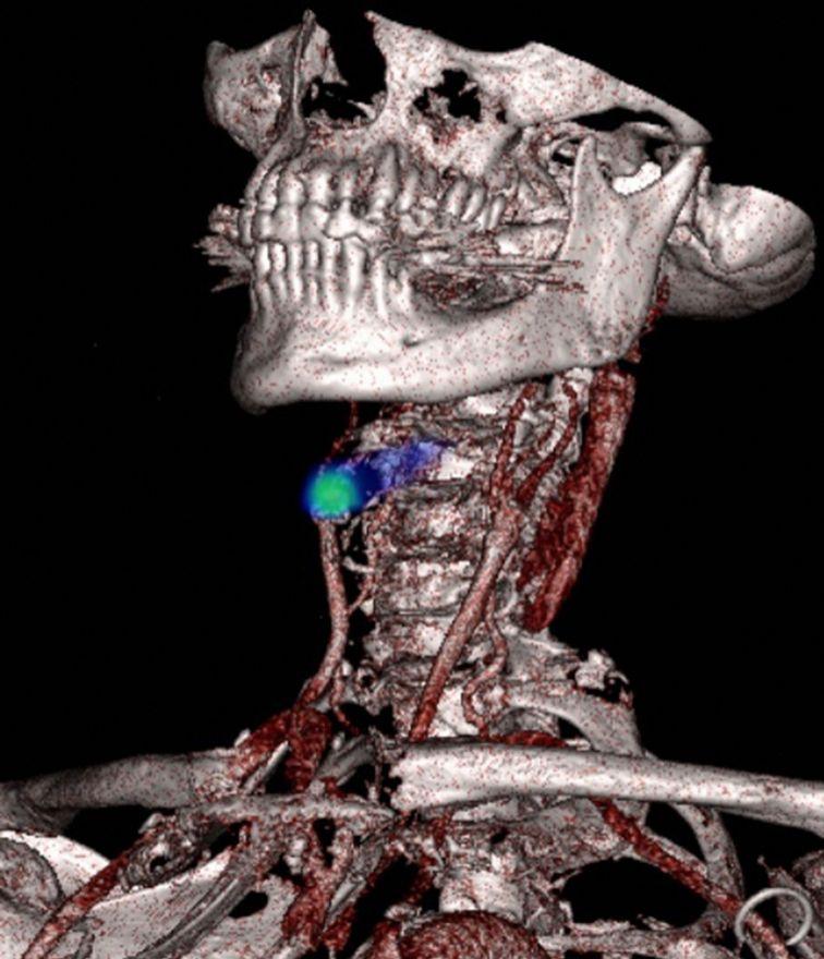 Justo bajo la mandíbula de este paciente se puede observar un bloqueo (en verde) en uno de los vasos sanguíneos (rojo). Este vaso sanguíneo proporciona sangre al cerebro. Los investigadores están desarrollando nuevas maneras de identificar estas áreas antes de que estallen, para reducir el riesgo de accidente cerebrovascular.