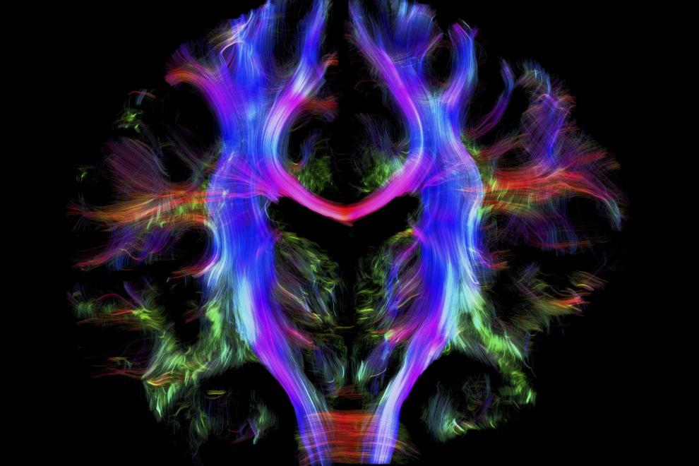 Los senderos de las fibras de los nervios en el cerebro de un humano adulto joven vistas desde atrás. Las diferentes partes del cerebro se comunican entre ellas a través de estas fibras nerviosas, que aquí están codificadas por colores.