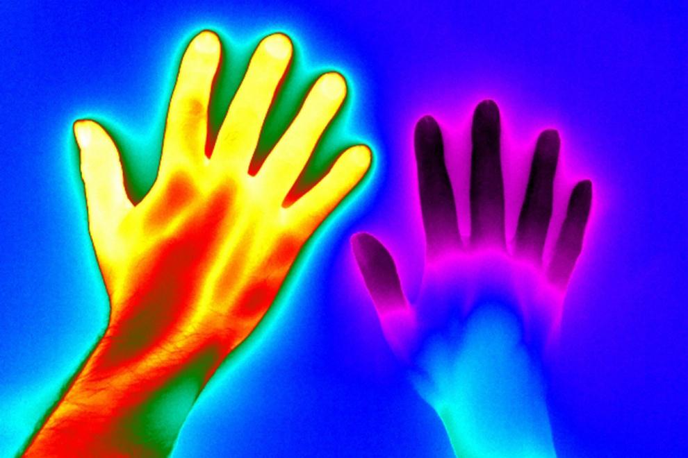 A la izquierda una mano sana y a la derecha una mano afectada por la enfermedad de Raynaud, que habitualmente afecta a las manos y pies y causa un menor riego sanguíneo en las extremeidades cuando una persona pasa frío, ansiedad o estrés.