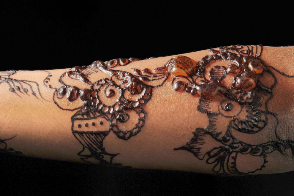 Ampollas formándose en una piel decorada con un tatuaje de henna negro en el brazo de una chica joven. La hhena se suele utilizar para pintar la piel o el cabello de un color marrón anaranjado, pero los colorantes químicos añadidos para conseguir el color negro pueden causar reacciones alérgicas y quemaduras.