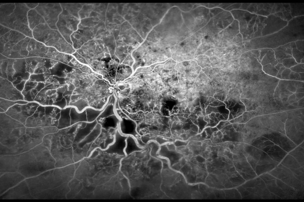 Vasos sanguíneos de un ojo humano.