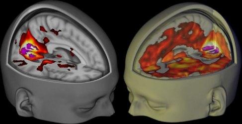 Cerebro bajo los efectos del LSD (dcha) comparado con uno normal...