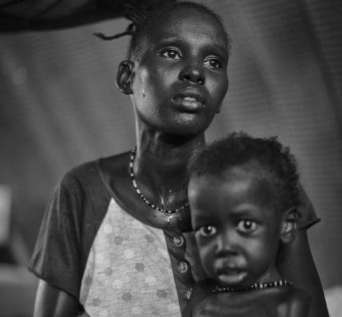 Makuschi, con su hijo Ayag, en el centro de desnutridos de IMC y...