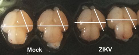 Tamaño cerebral de ratones no infectados por Zika (Mock) y los que...