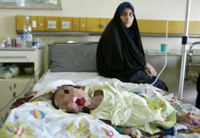 315.000 niños menores de cinco años mueren cada año por una...