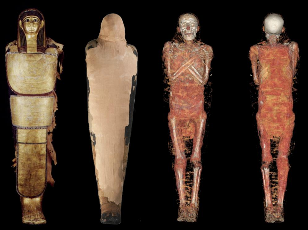 Distintas imágenes de una de las momias.