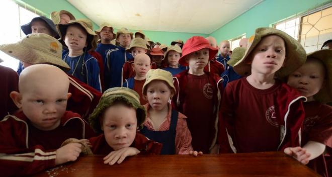 Niños albinos en una escuela de Tanzania.