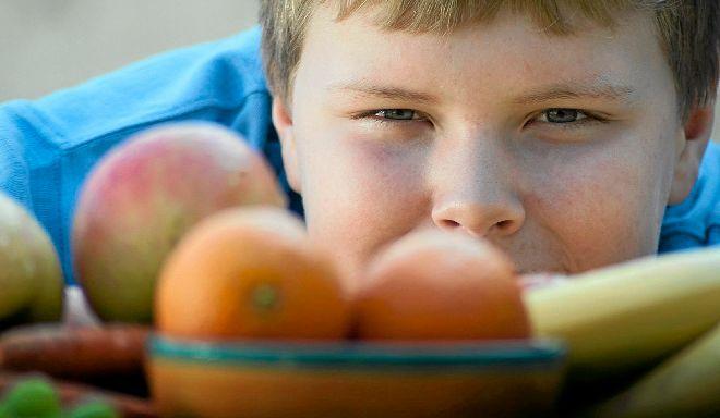 La obesidad es un importante problema de salud pública