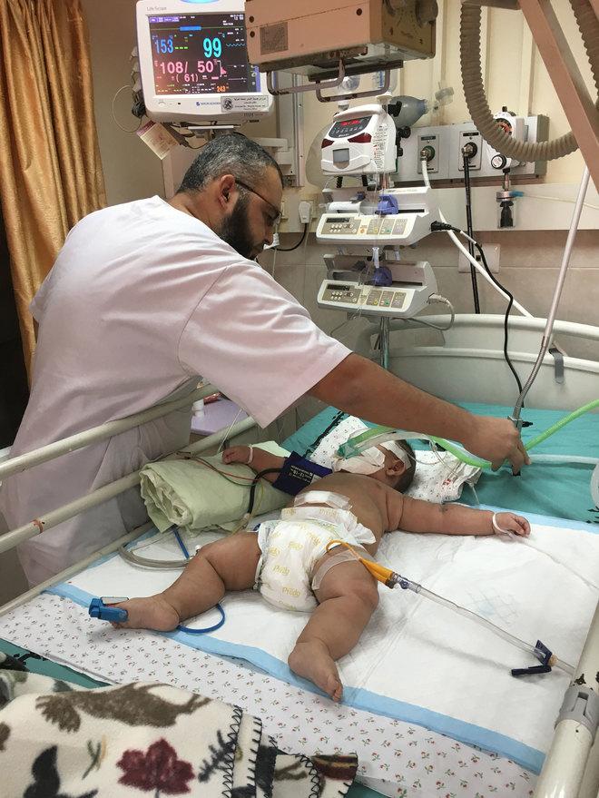 Un niño ingresado en el hospital pediátrico de Gaza.