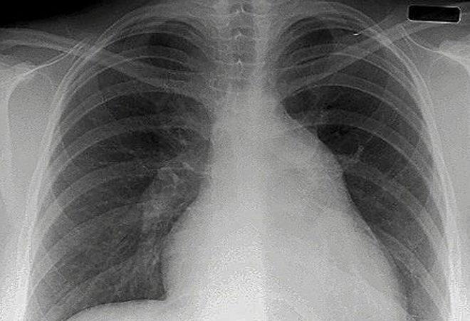 Una radiografía de unos pulmones.