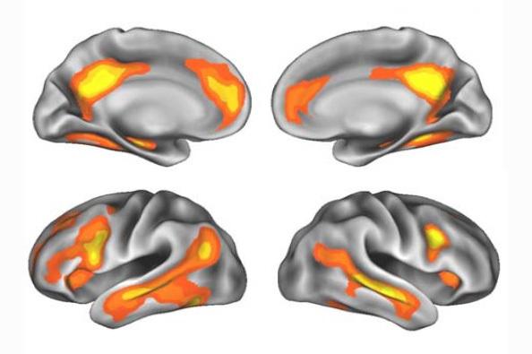 Las regiones cerebrales con cambios de volumen después del embarazo.