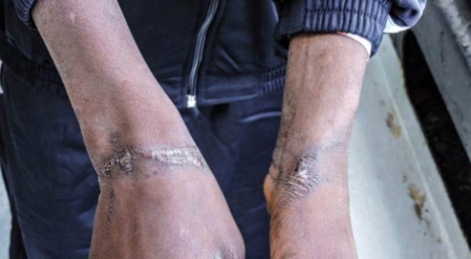 Las cicatrices en las muñecas de un subsahariano tras los maltratos
