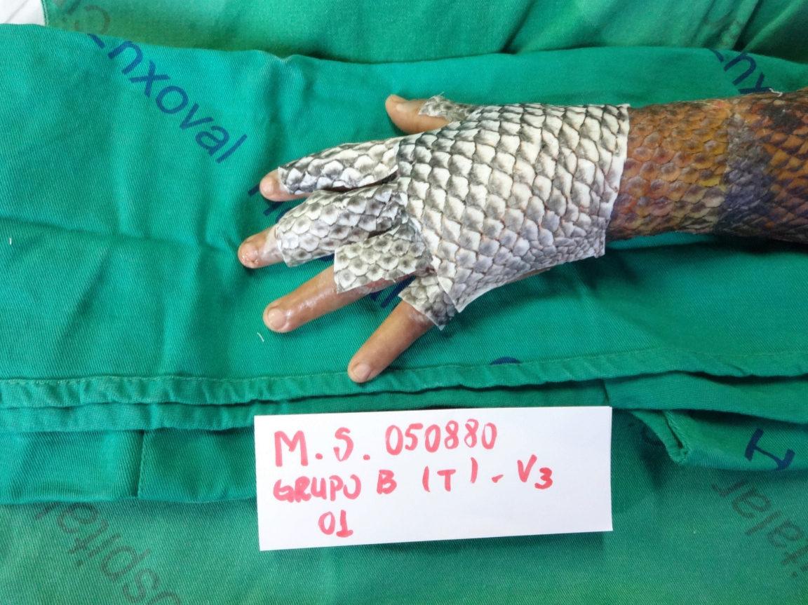 Es el primer vendaje curativo con piel de animal acuático en el...