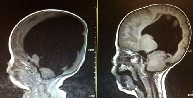¿Qué causa el líquido en el cerebro en un feto?