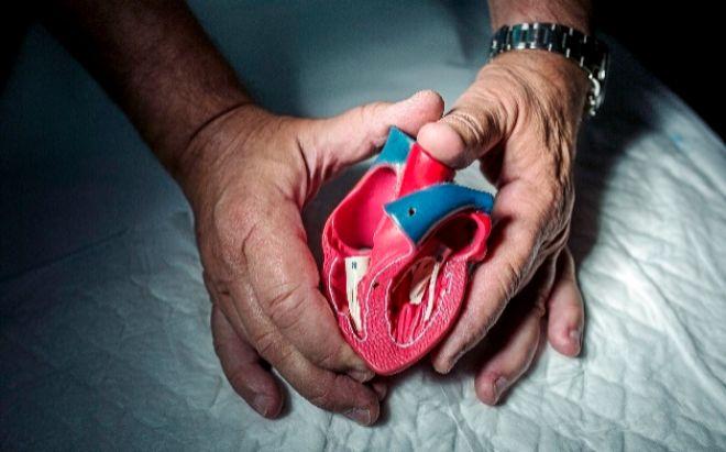 Molde de un corazón infantil entre las manos del doctor Cabo.