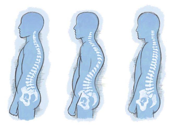 De izquierda a derecha, postura natural, hipercifosis y rectificación...