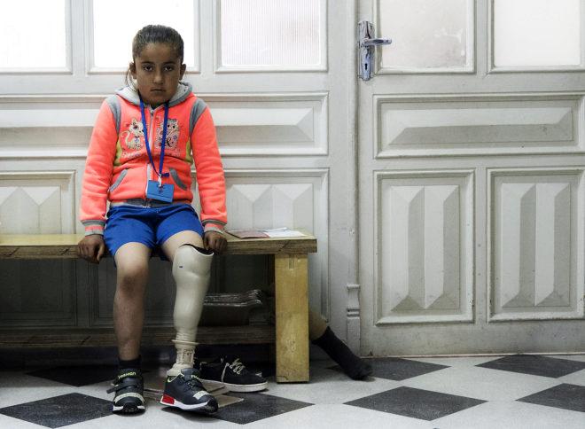 La pequeña Zeinab, con una prótesis, espera ser atendida en Alepo.