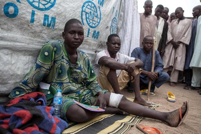 Un hombre herido en un campamento para huidos de Boko Haram en Nigeria.