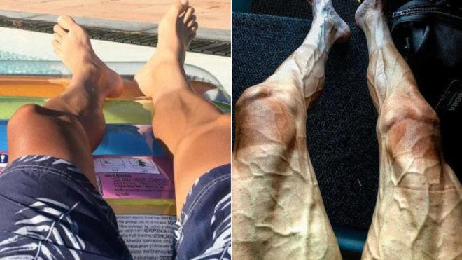 El antes y el después del Tour: así quedaron las piernas de Poljanski