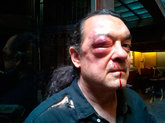 Fernando Barrero, tras la agresión sufrida esta mañana.