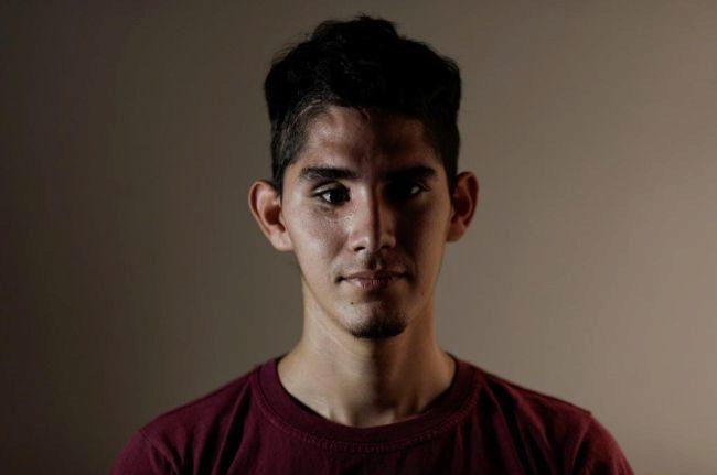 David Osorio, de 21 años, es profesor de inglés y fue herido en un ojo por el lanzamiento de una bomba de gas por parte de las fuerzas de Maduro.