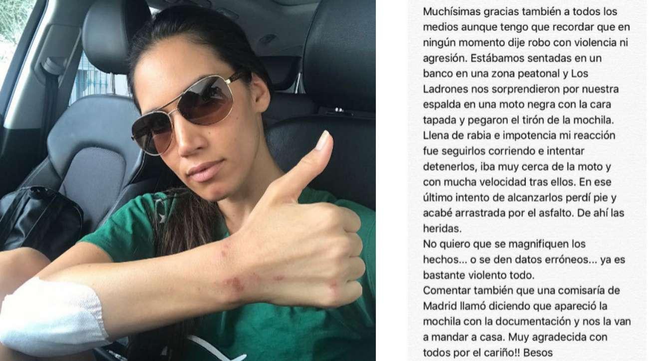 La cantante India Martínez (31) sufrió ayer un atraco mientras...