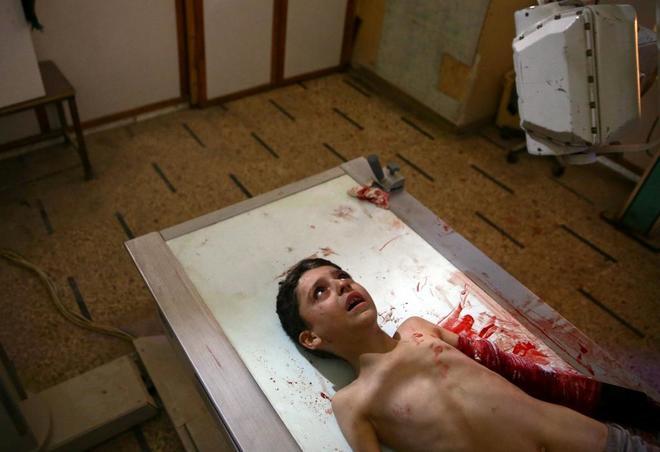 Un niño con el brazo herido tras el bombardeo de la localidad de Guta.