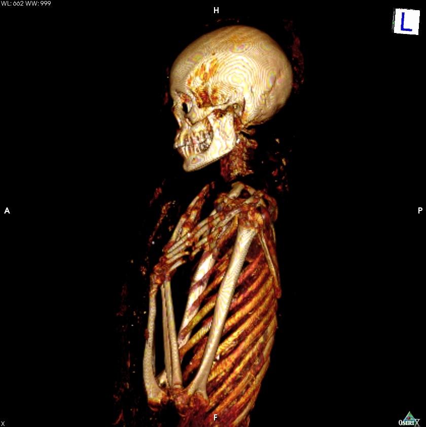 Una de las imágenes del escaneado del Proyecto Qubbet el Hawa.