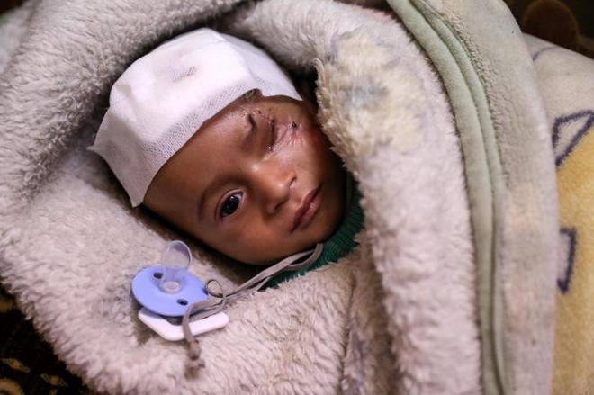 El pequeño Karim, herido y huérfano tras los bombardeos en el distrito damasceno de Guta Este.