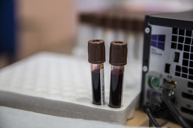 como saber si tengo cancer en analisis de sangre