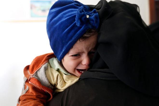 Una niña yemení que sufre desnutrición espera en un centro médico en Bani Hawat, cerca de la capital, Sanaa.